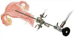 Органосохраняющие операции при миоме матки
